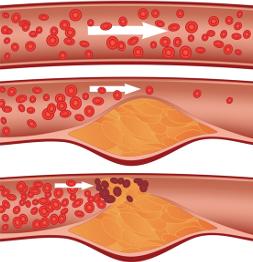 Атеросклероз: причины возникновения и диагностика